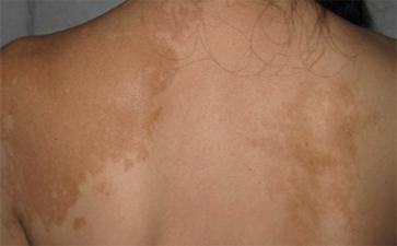 背部白癜风的症状是怎样的